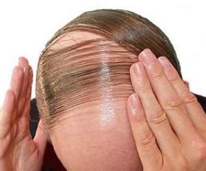 alopecia-androgenetica-calvizia